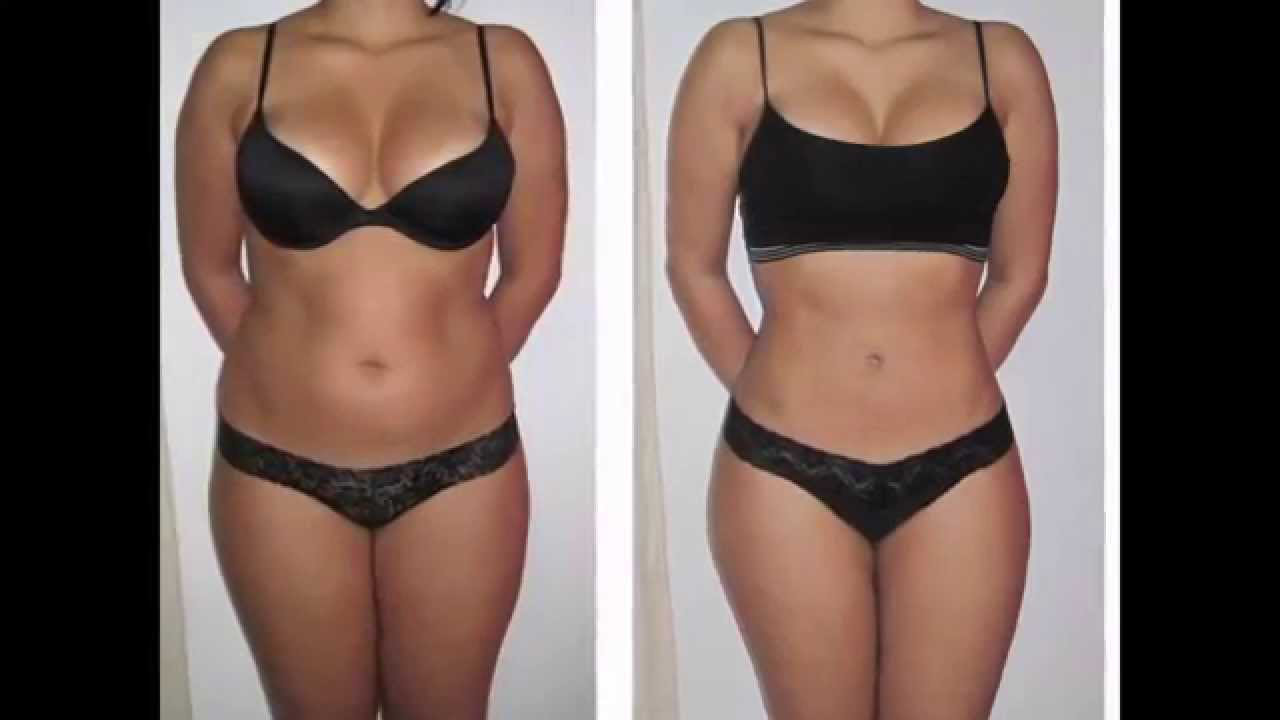 Has Lipo Laser Worked For You